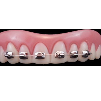 Costume Teeth with Silver Braces